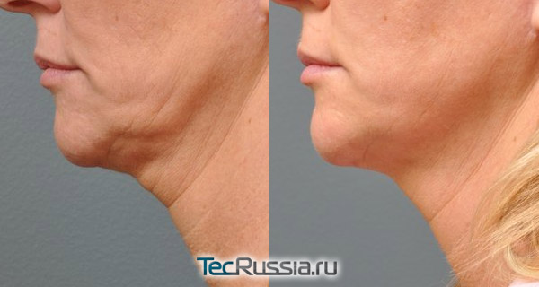 фото до и после Альтера-терапии кожи на шее