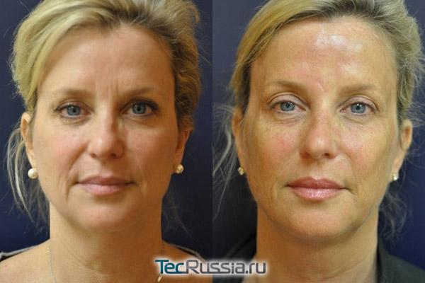глубокая подтяжка лица на аппарате Ulthera – фото до и после