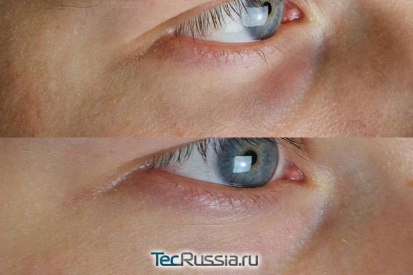 устранение синяков под глазами