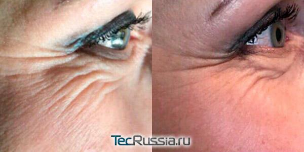 коррекция складок вокруг глаз с помощью Мезоай