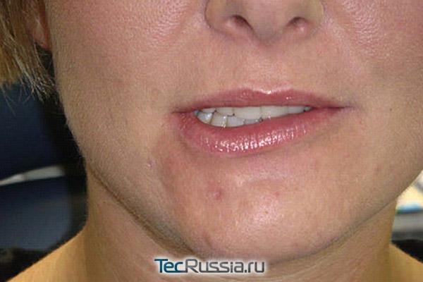 паралич левой стороны губ после Ботокса