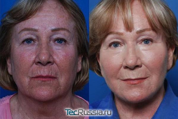 эндоскопическая подтяжка лица, фото до и после операции