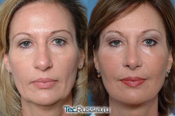 эндоскопический лифтинг лица, фото до и после операции