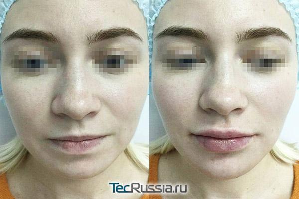увеличение губ филлером Реплери №1