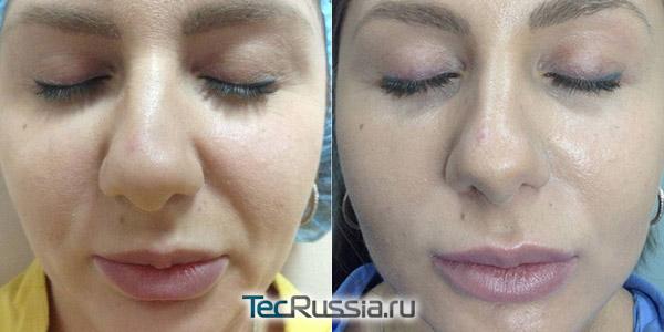 Mesosculpt C71 для лица - фото до и после