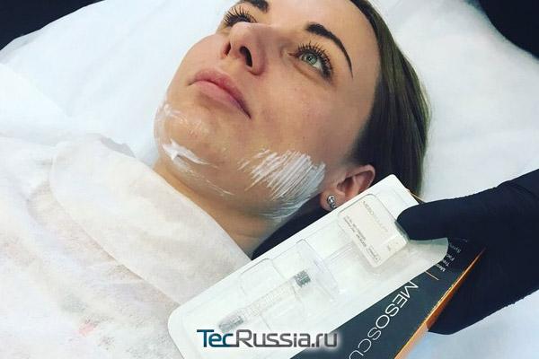 Mesosculpt C71 (Мезоскульпт) – препарат-липолитик для лица