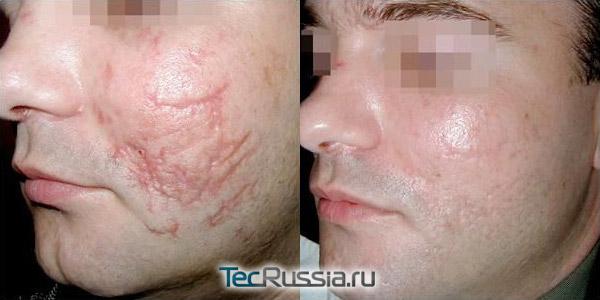 фото до и после дермабразии шрамов