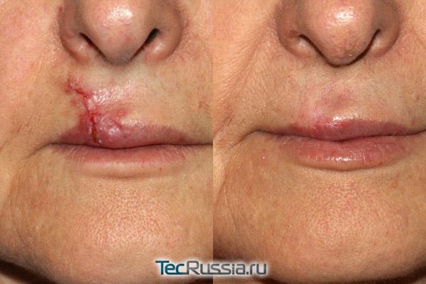 до и после дермабразии рубца над губой