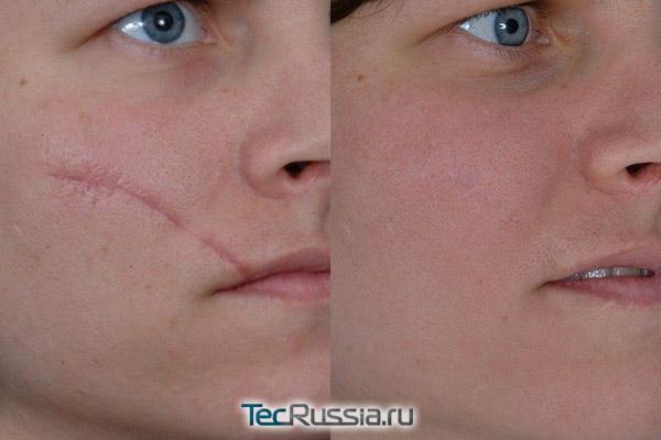 Коррекция рубца на лице - фото до и после