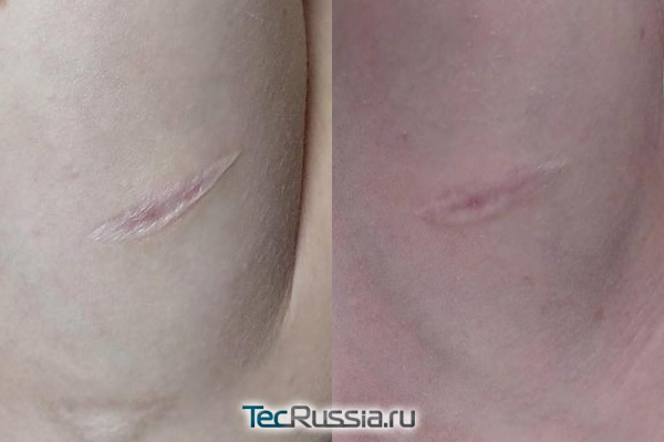 до и после лечения шрама