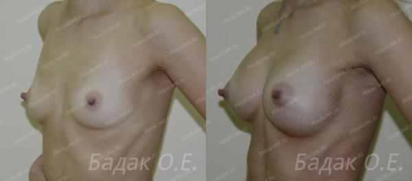 результаты трансаксиллярной операции, хирург Бадак О.Е.