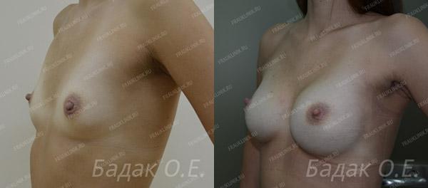 эндоскопическое увеличение груди фото