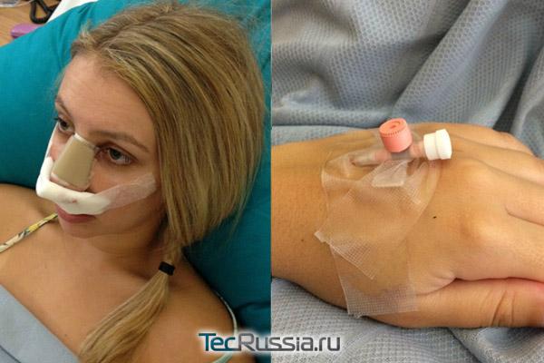 последствия пластической операции на нос