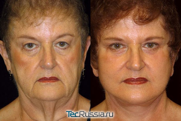 фото до и после подтяжки и пилинга лица