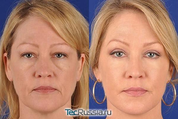 SMAS-лифтинг, фото до и после операции