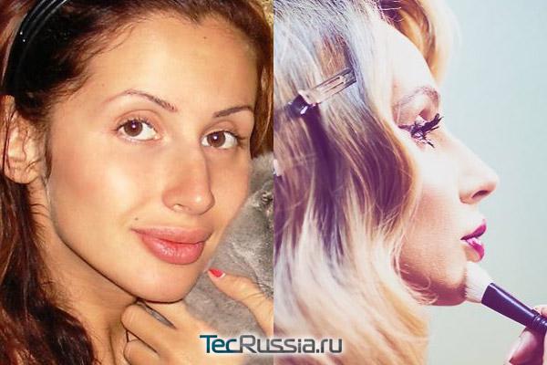 лобода до и после пластики носа