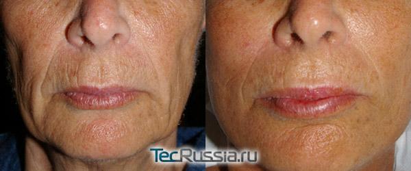 срединный пилинг для омоложения кожи лица