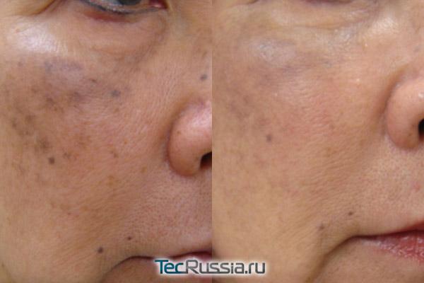 фото до и после пилинга лица PRX-T33