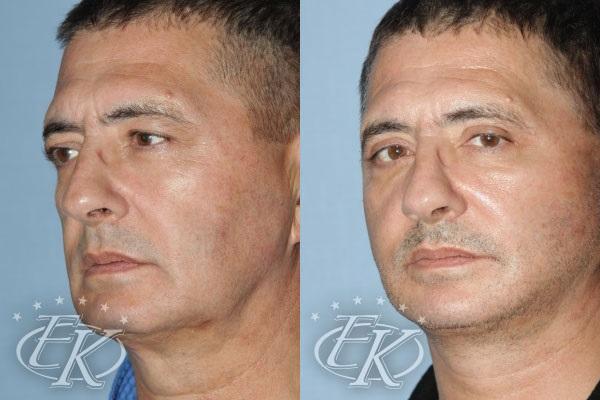 Александр Мсников до и после операции по подтяжке лица