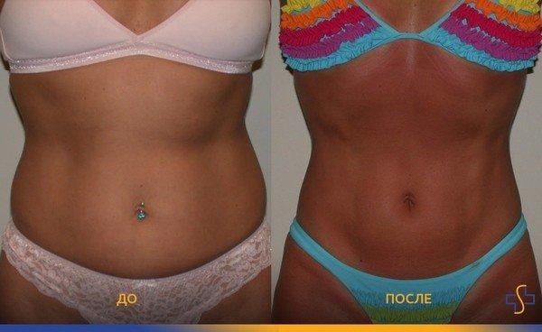 фото до и после VASER-липосакции