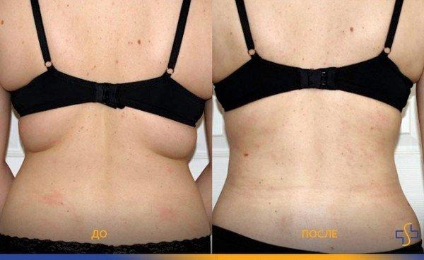 устранение складок со спины
