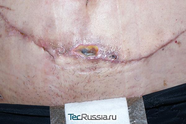 шов на месте пластики живота частично разошелся из-за некроза тканей