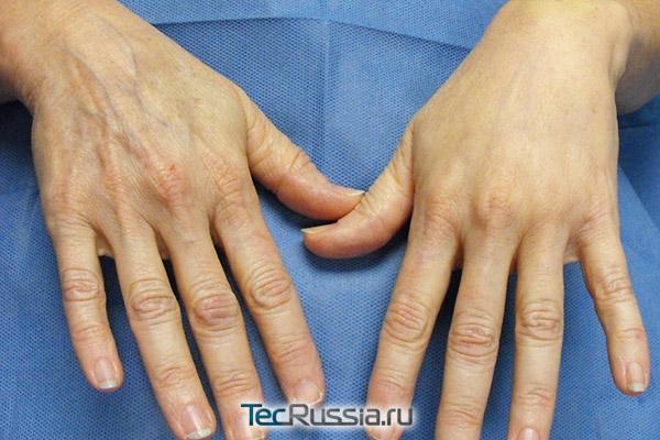 пересадка жира в кисти рук