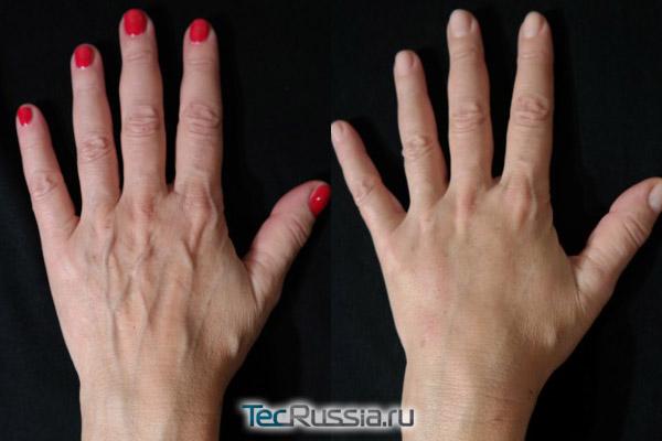 фото до и после липофилинга кистей