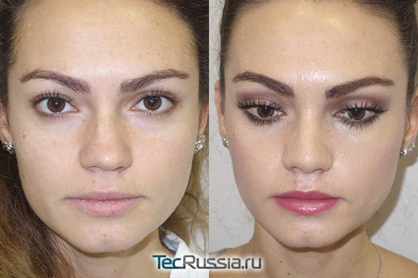 фото до и после коррекции носа
