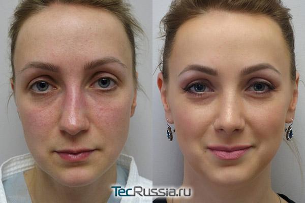 фото до и после закрытой риносептопластики, вид спереди
