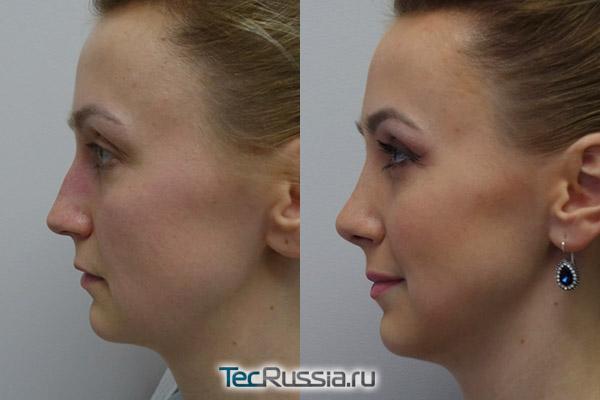 результаты пластики носа, в профиль