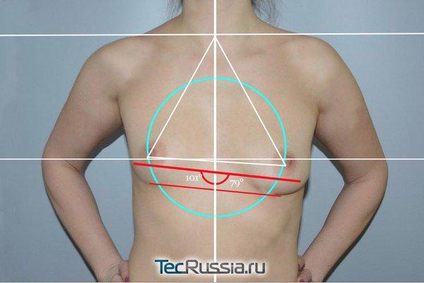 пациентка доктора Копасова до пластики груди