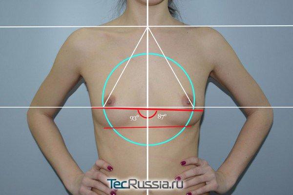 до установки эндопротезов груди