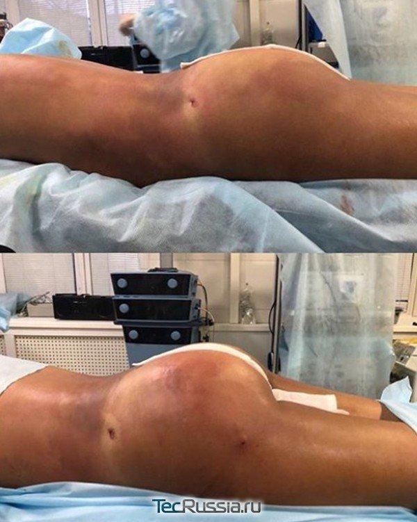 липофилинг ягодиц, до и после операции