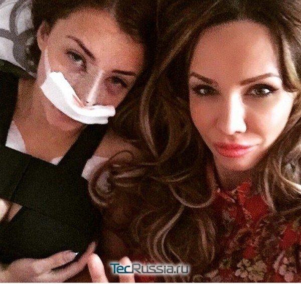 Виктория Берникова после ринопластики