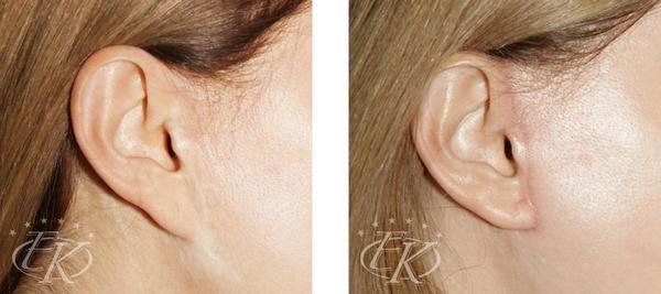 коррекция деформации мочки уха