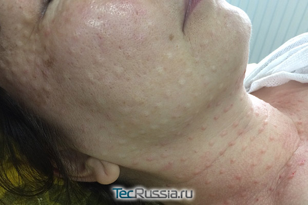 состояние кожи лица сразу после инъекций