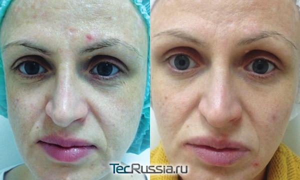 Кожа до и после редермализации