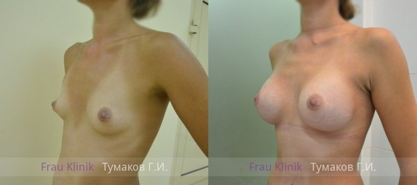 эндоскопическое увеличение груди через подмышечную впадину