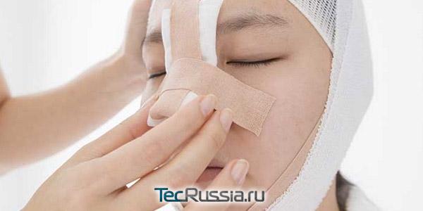 послеоперационная повязка на носу