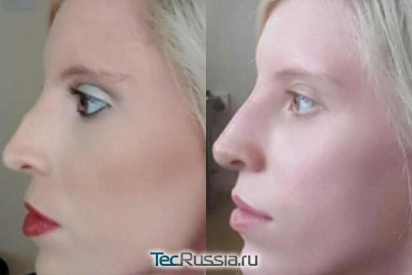 до и после удаления костной мозоли с переносицы