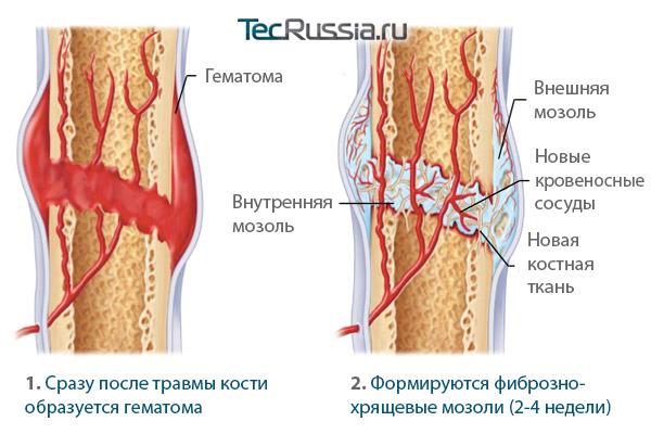 стадии заживления сломанной кости: формирование внутренних и внешних мозолей