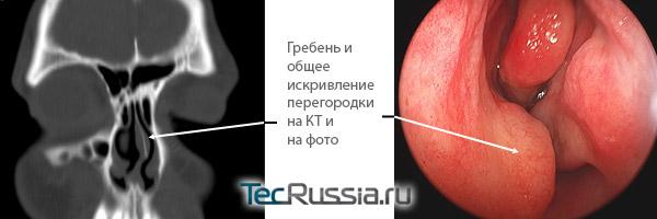 так выглядит гребень носовой перегородки на фото и результатах КТ