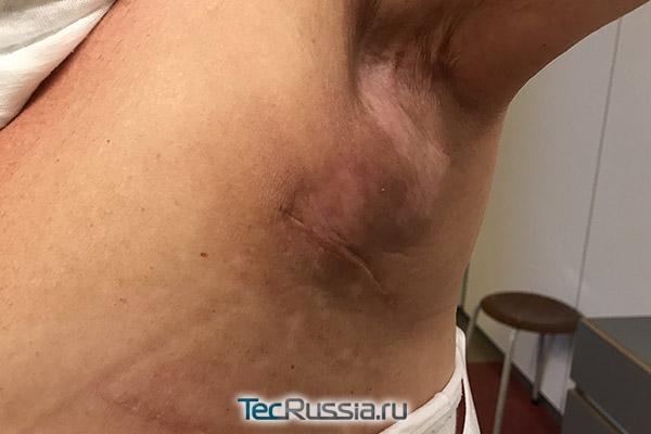 серома в подмышечной области после операции на груди