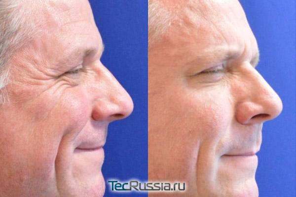результаты устранения гусиных лапок у пациента-мужчины