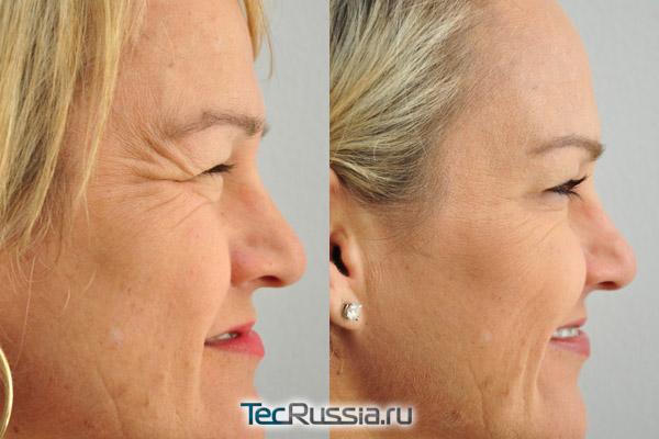 уколы ботокса под глаза, фото до и после процедуры