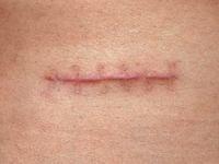 Как избавиться от свежих шрамов – самые эффективные способы