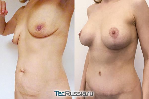 подтяжка, увеличение груди и абдоминопластика, вид сбоку