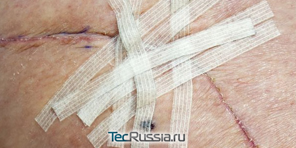 шрам в процессе лечения