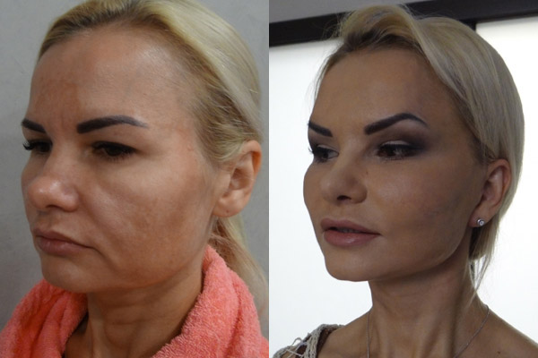 фото до и после пластики лица, хирург - Шах Г.Ш.